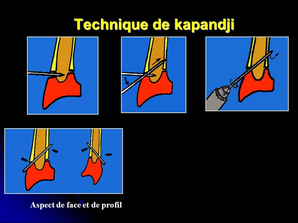 Technique de kapandji Aspect de face et de profil