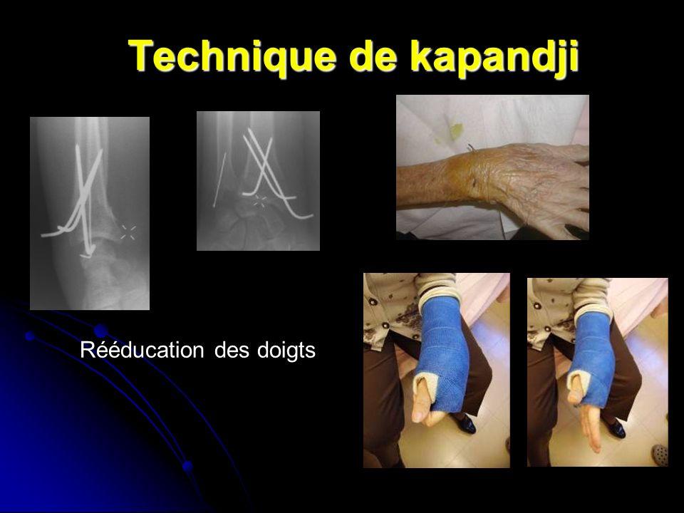 Technique de kapandji Rééducation des doigts