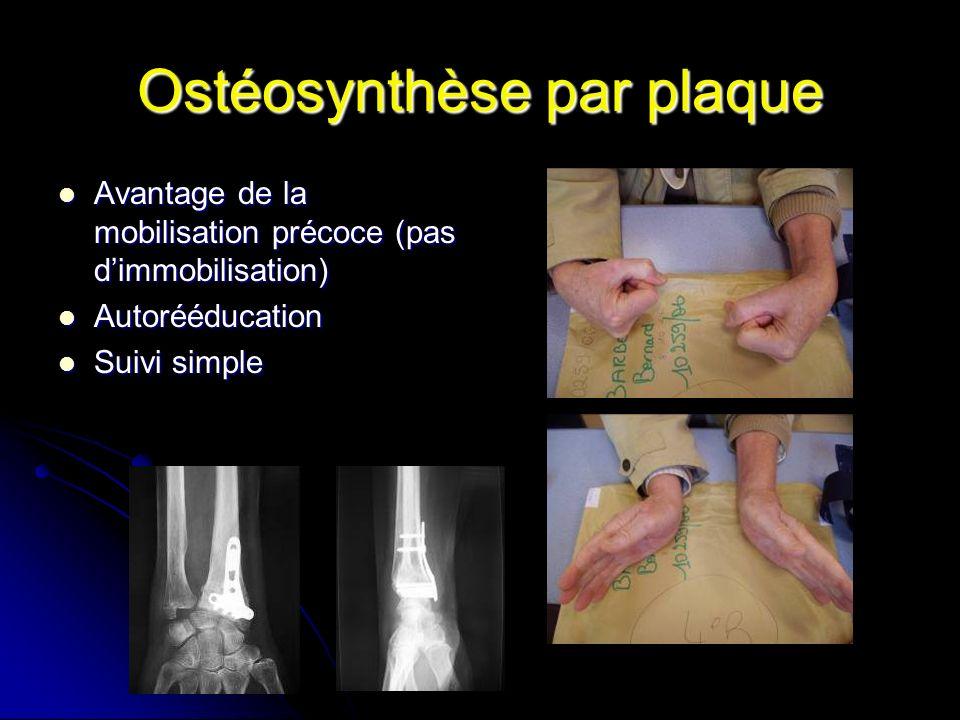 Ostéosynthèse par plaque