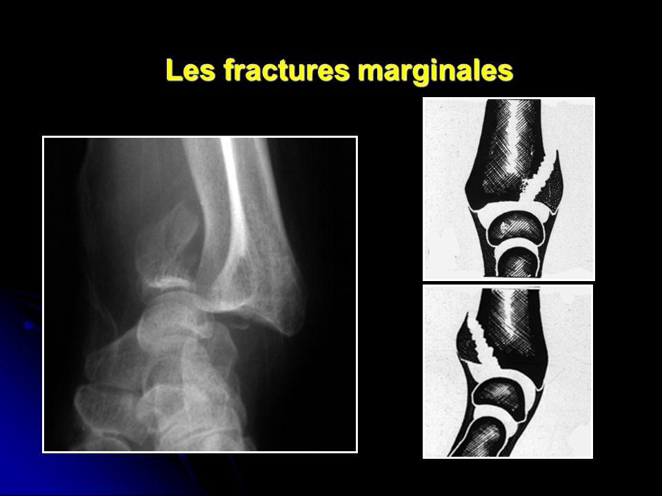 Les fractures marginales