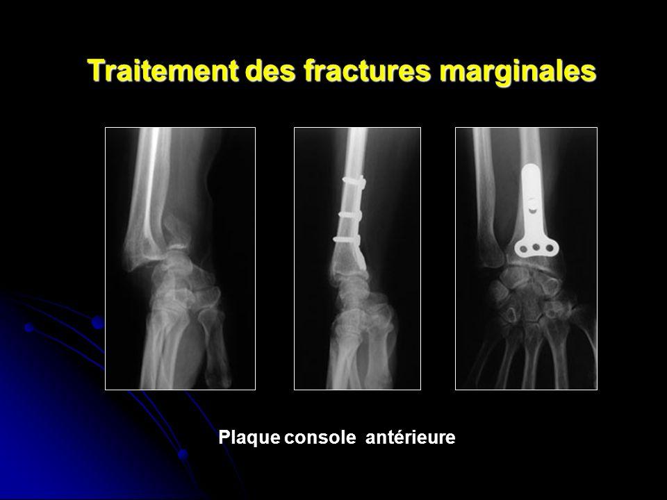Traitement des fractures marginales Plaque console antérieure