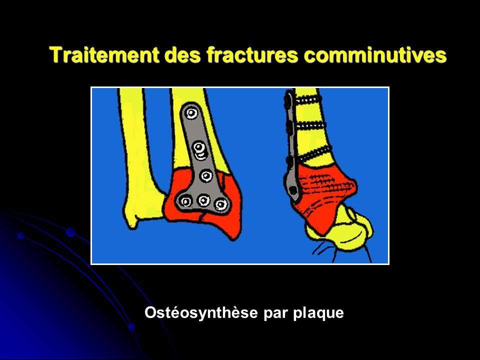 Traitement des fractures comminutives