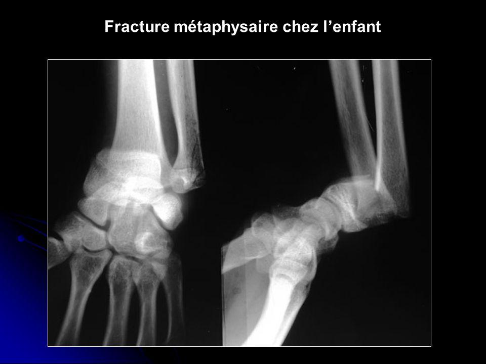Fracture métaphysaire chez l'enfant