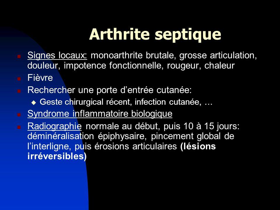 Arthrite septique Signes locaux: monoarthrite brutale, grosse articulation, douleur, impotence fonctionnelle, rougeur, chaleur.