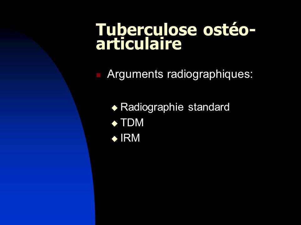 Tuberculose ostéo-articulaire