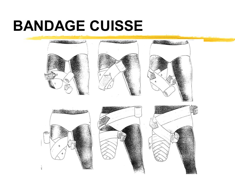 BANDAGE CUISSE