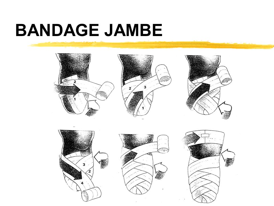 BANDAGE JAMBE
