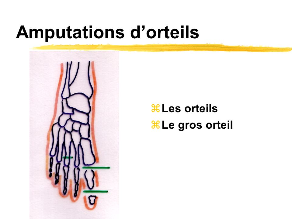 Amputations d'orteils