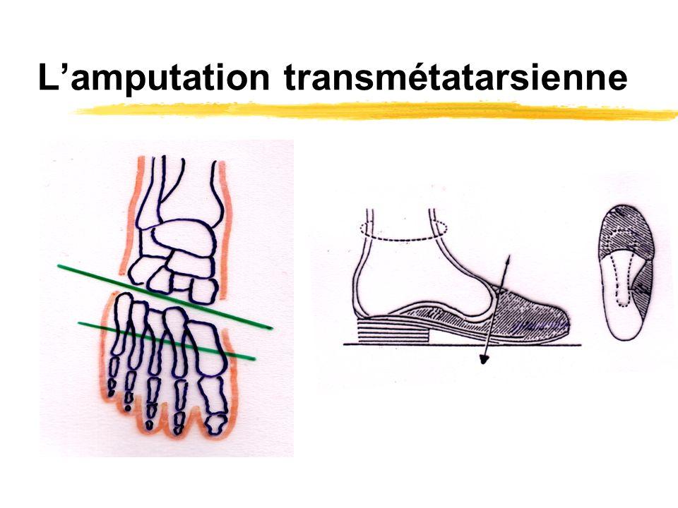 L'amputation transmétatarsienne