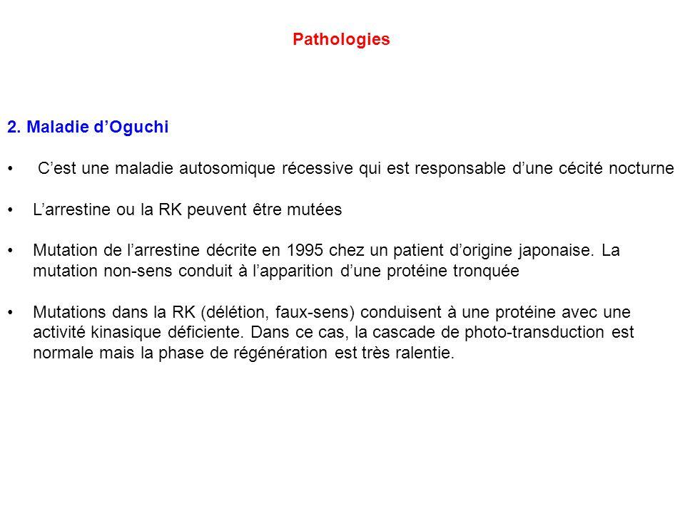 Pathologies 2. Maladie d'Oguchi. C'est une maladie autosomique récessive qui est responsable d'une cécité nocturne.