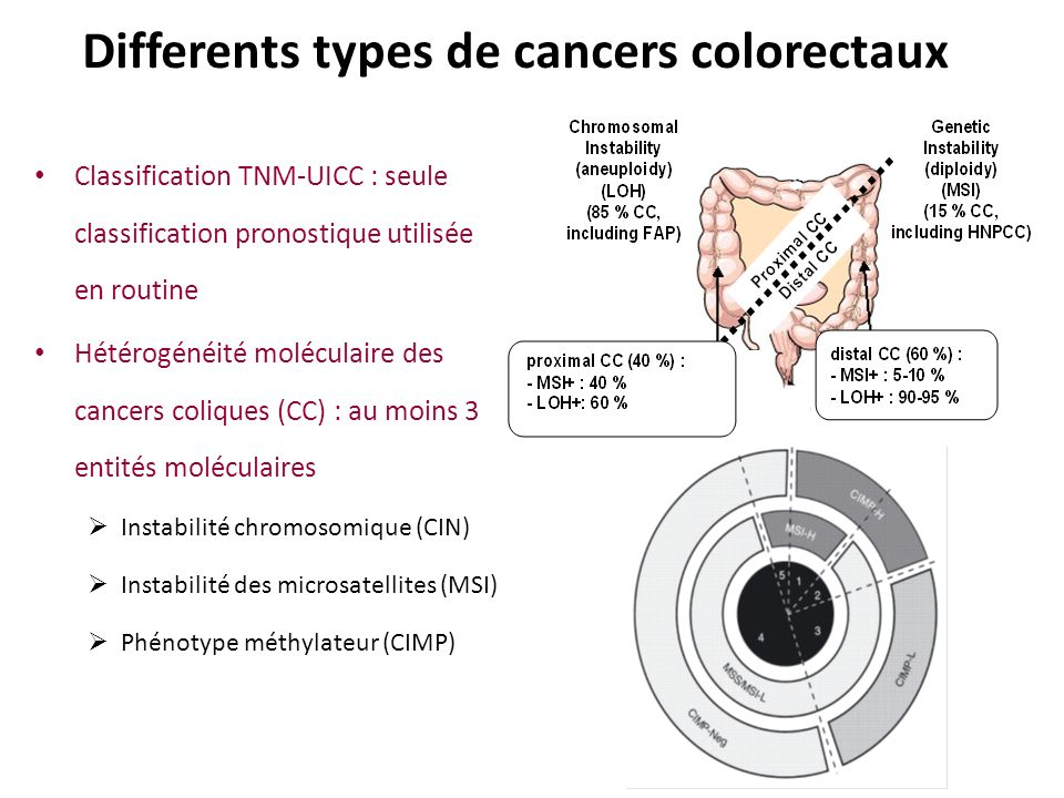 Differents types de cancers colorectaux