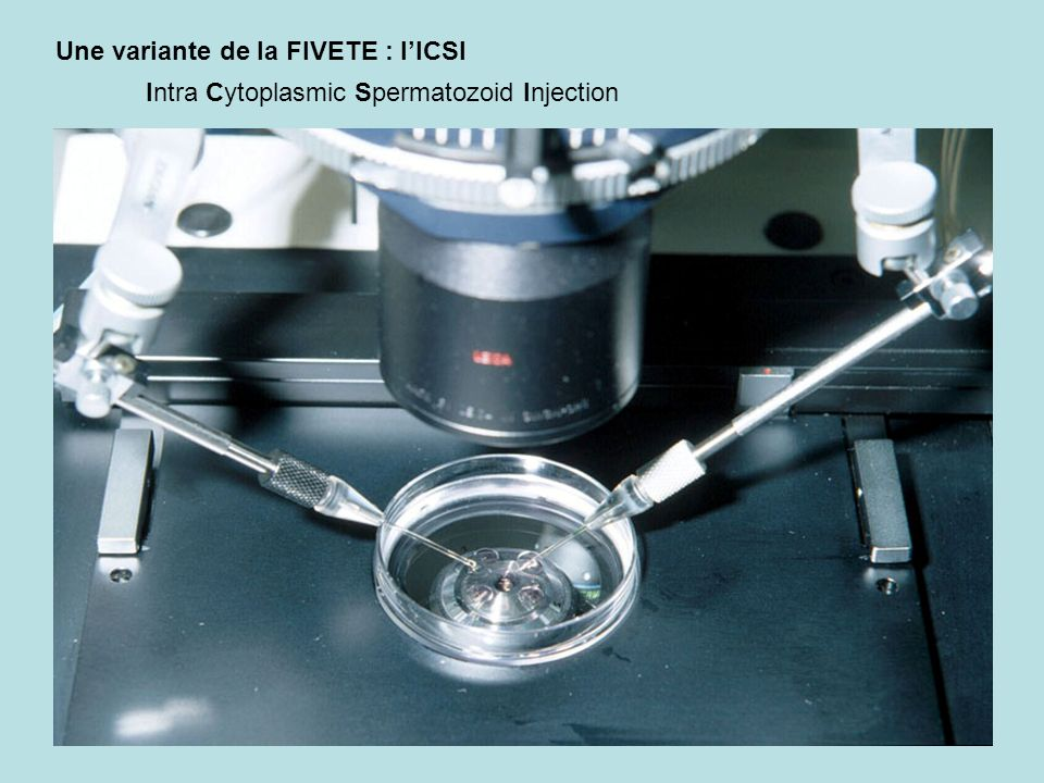 Une variante de la FIVETE : l'ICSI