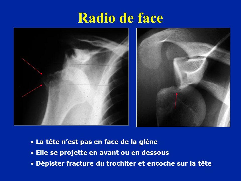 Radio de face La tête n'est pas en face de la glène