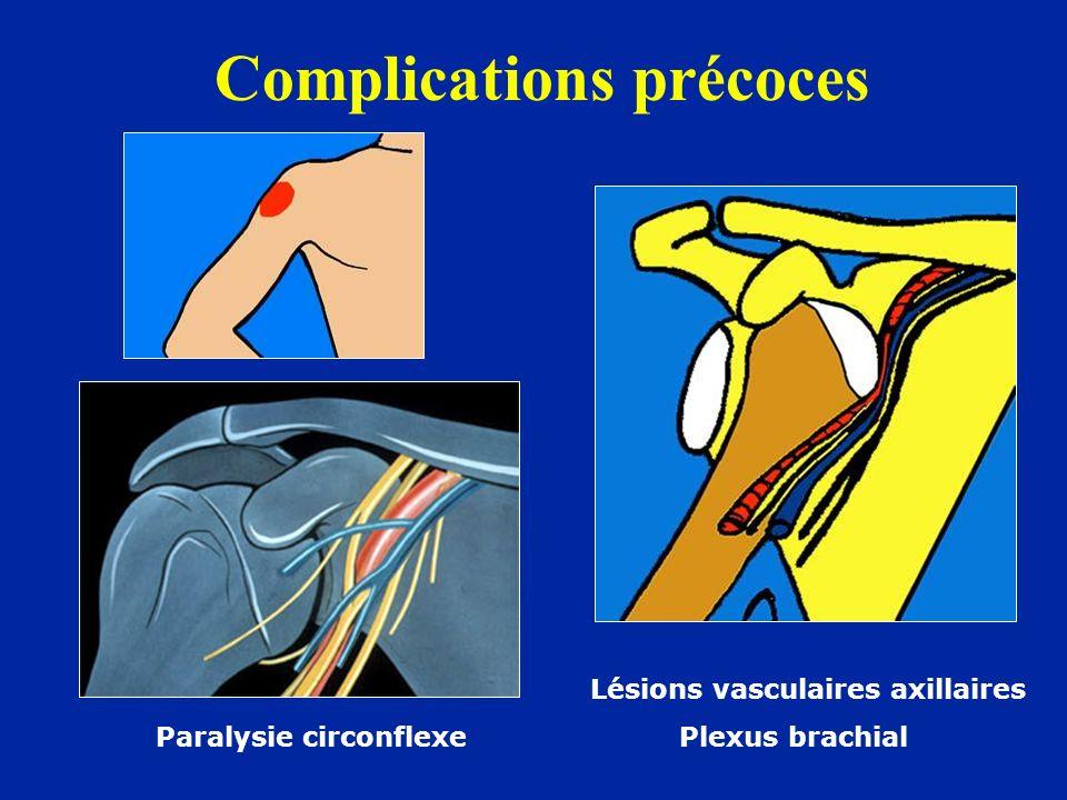 Complications précoces