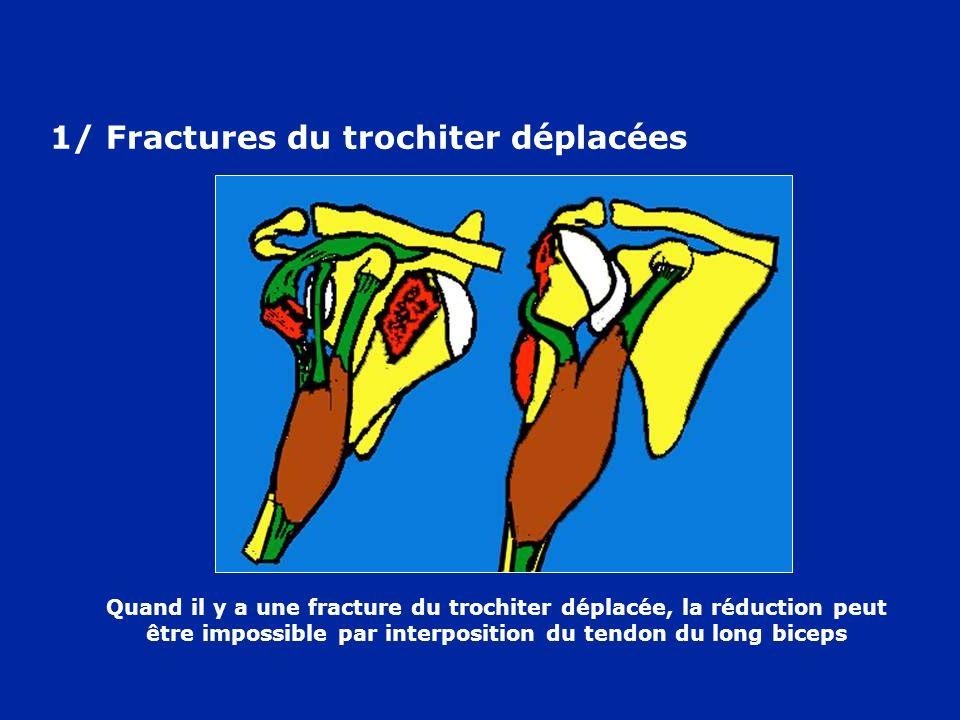 1/ Fractures du trochiter déplacées
