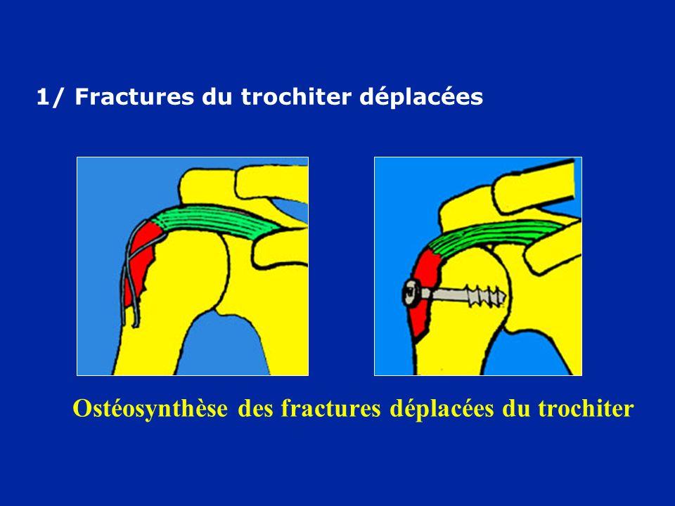 Ostéosynthèse des fractures déplacées du trochiter