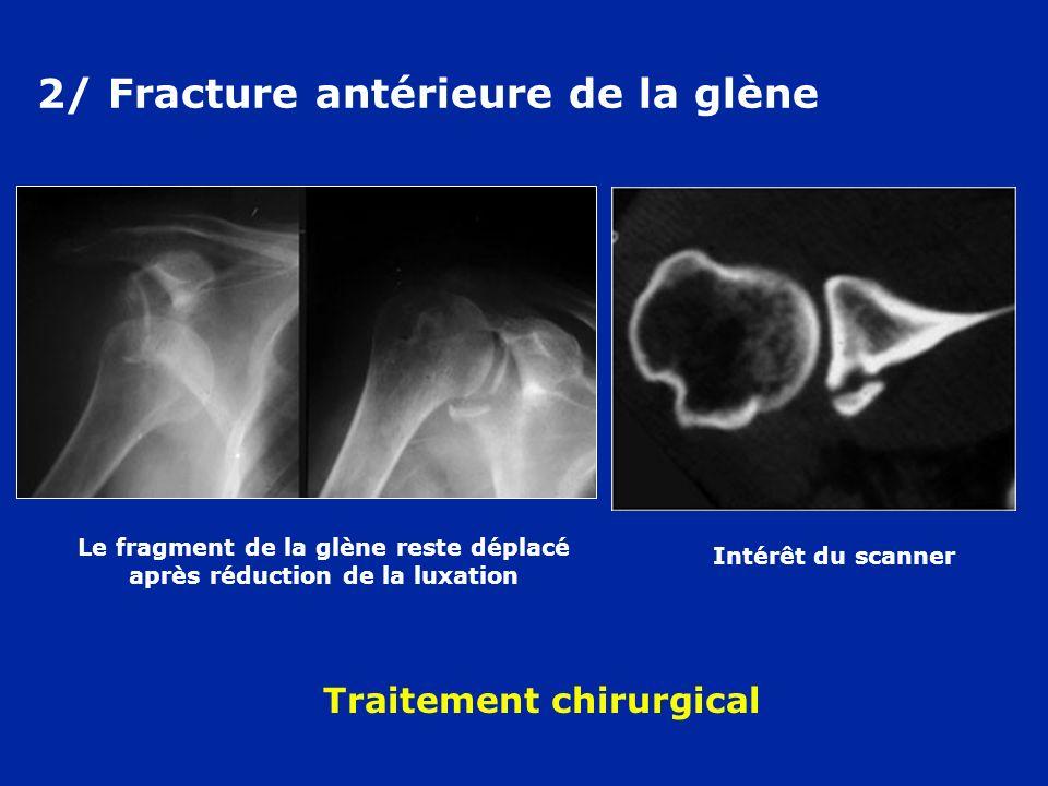 2/ Fracture antérieure de la glène