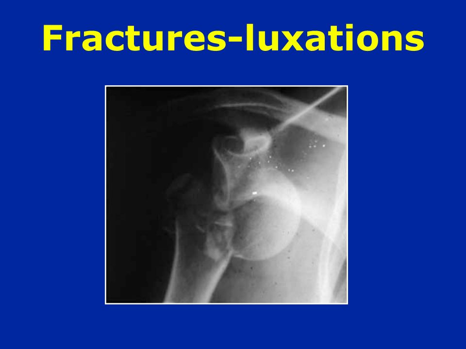Fractures-luxations