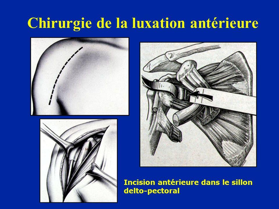 Chirurgie de la luxation antérieure