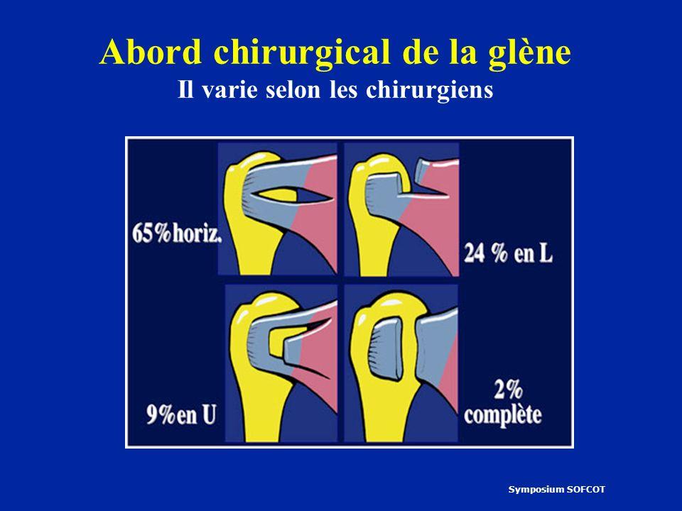 Abord chirurgical de la glène Il varie selon les chirurgiens