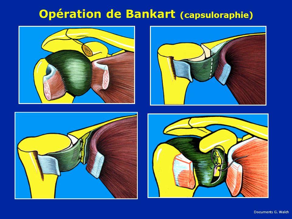 Opération de Bankart (capsuloraphie)