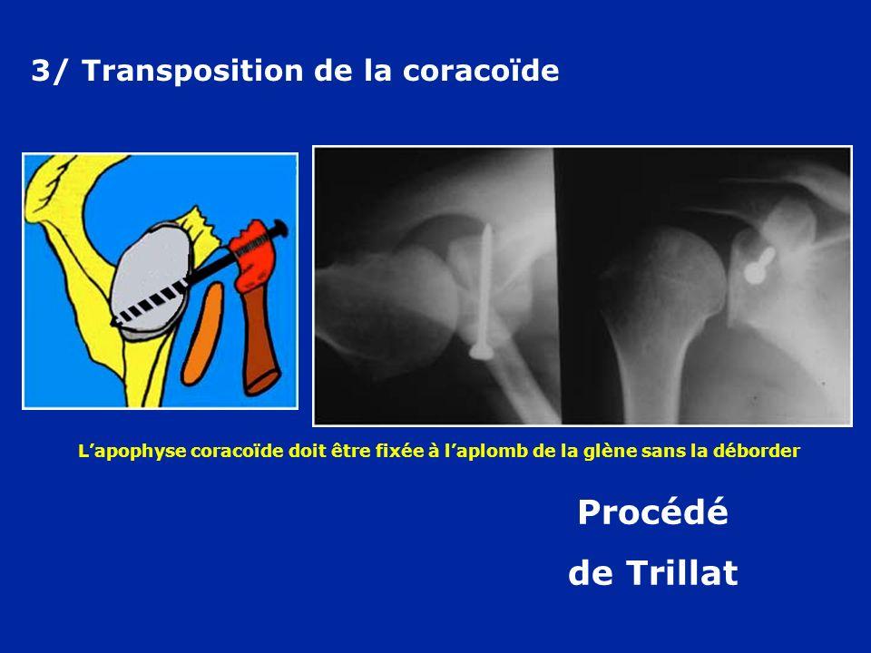 Procédé de Trillat 3/ Transposition de la coracoïde