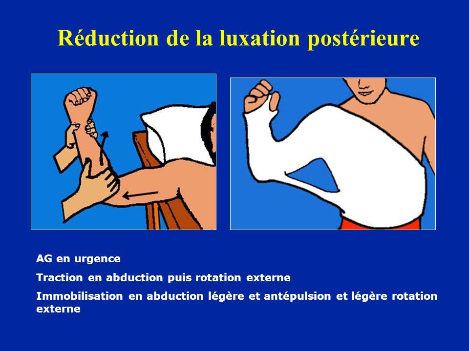 Réduction de la luxation postérieure