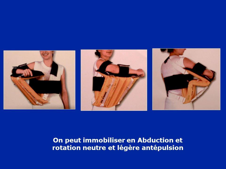 On peut immobiliser en Abduction et rotation neutre et légère antépulsion