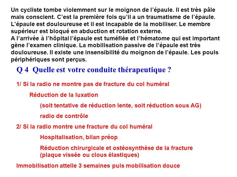 Q 4 Quelle est votre conduite thérapeutique