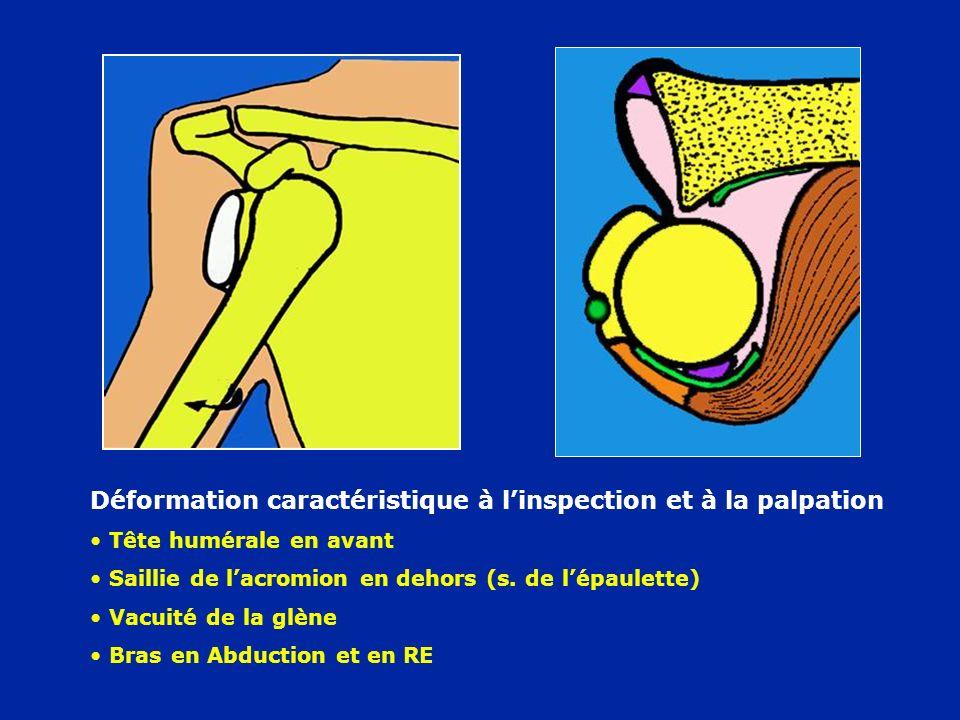 Déformation caractéristique à l'inspection et à la palpation