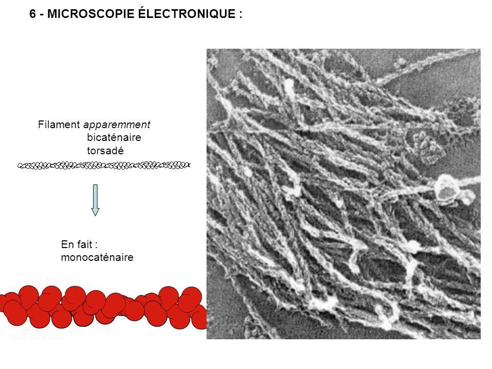 6 - MICROSCOPIE ÉLECTRONIQUE :
