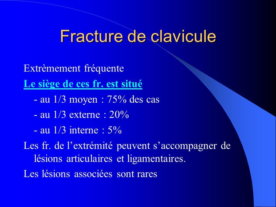 Fracture de clavicule Extrèmement fréquente