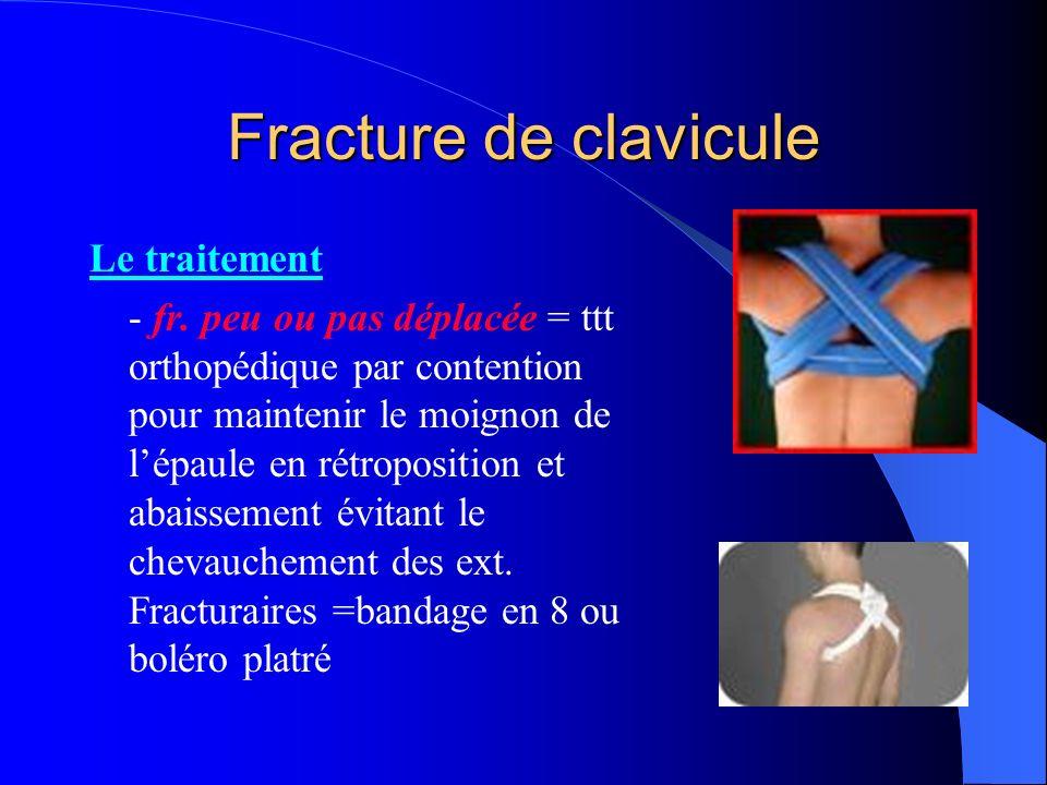 Fracture de clavicule Le traitement