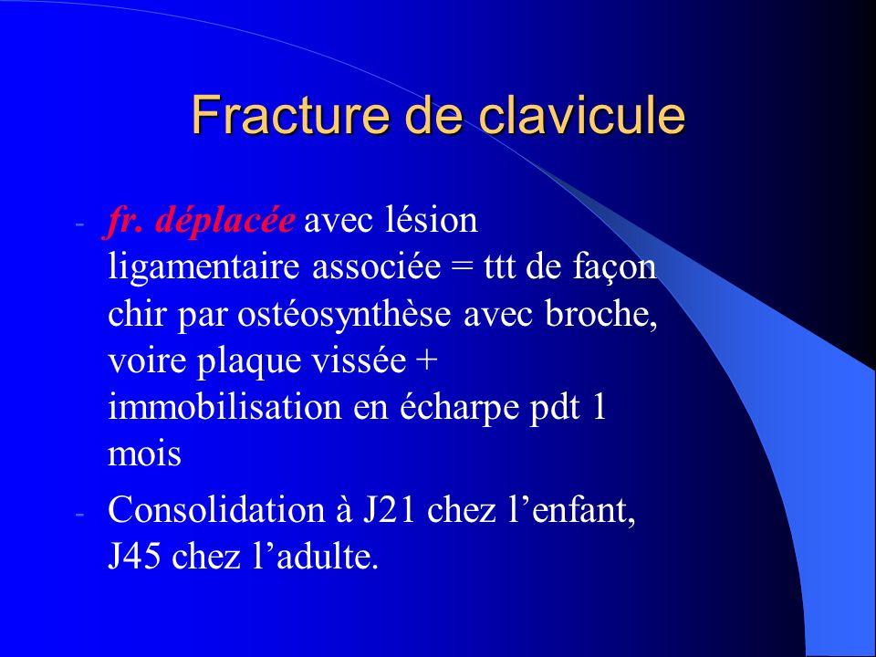 Fracture de clavicule