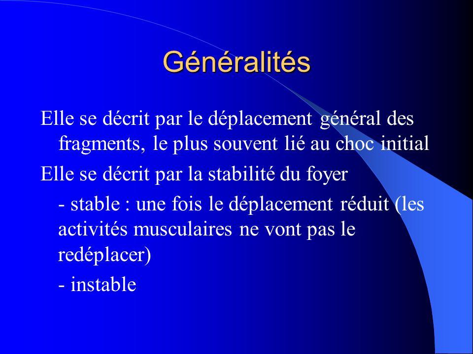 Généralités Elle se décrit par le déplacement général des fragments, le plus souvent lié au choc initial.