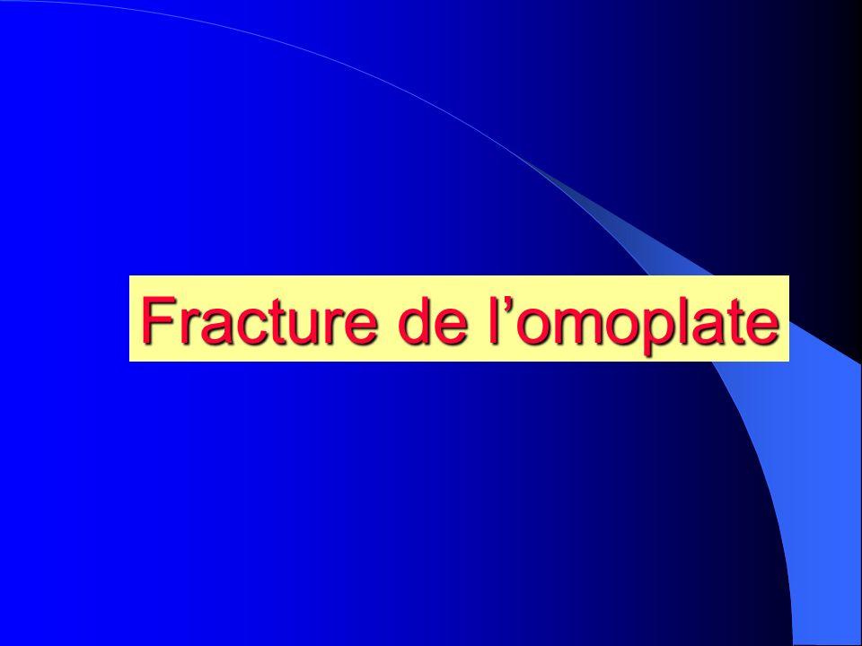 Fracture de l'omoplate