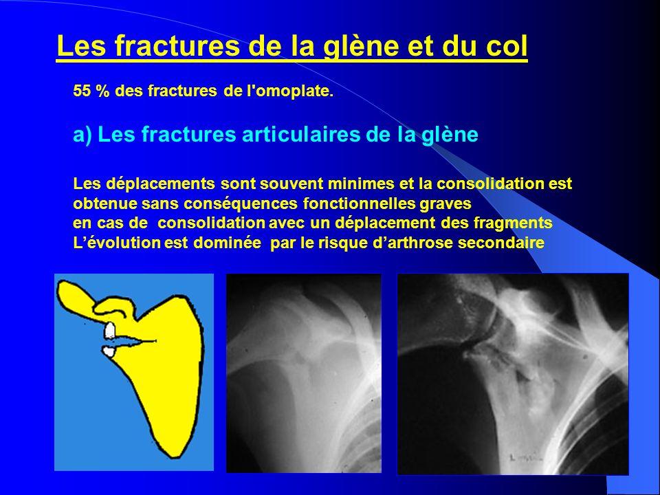 Les fractures de la glène et du col