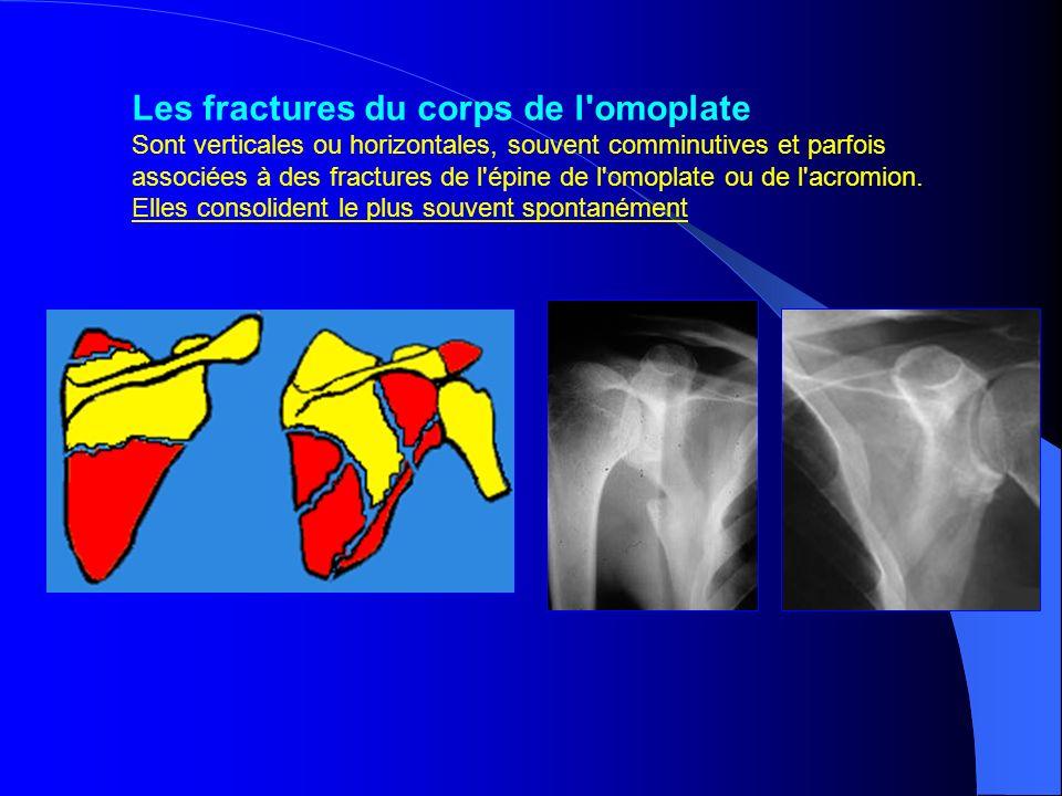 Les fractures du corps de l omoplate