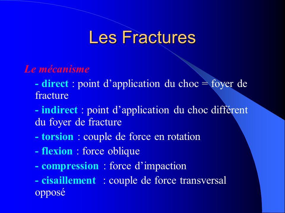 Les Fractures Le mécanisme