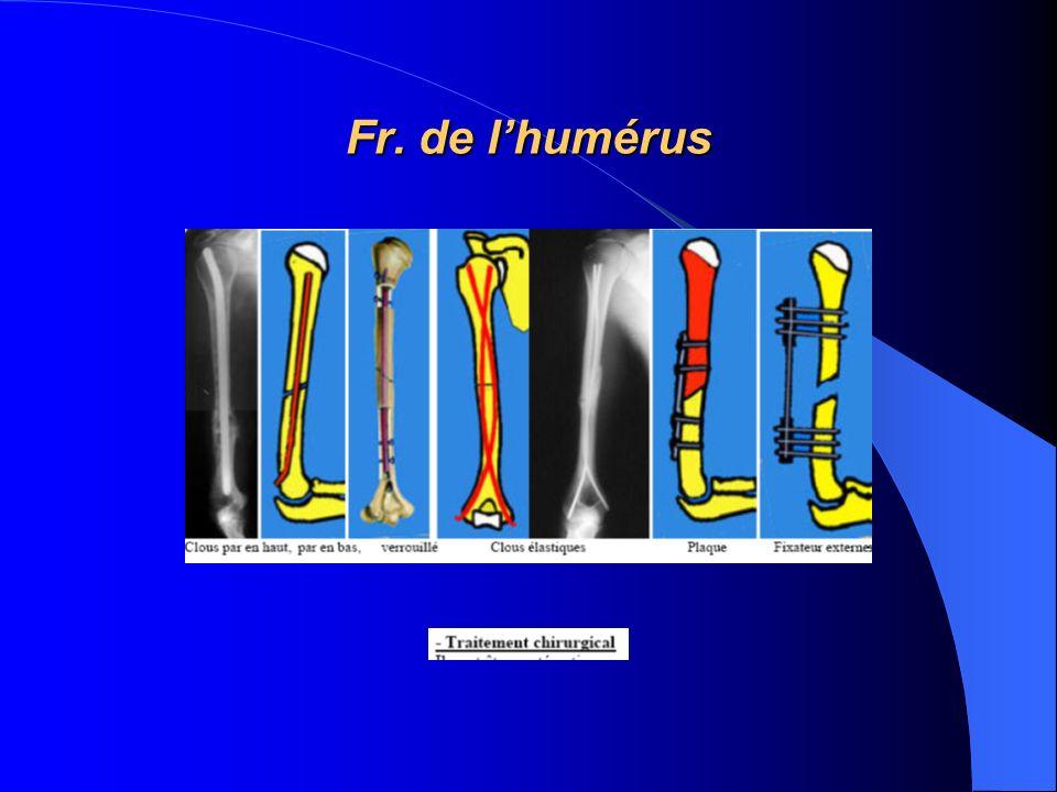 Fr. de l'humérus