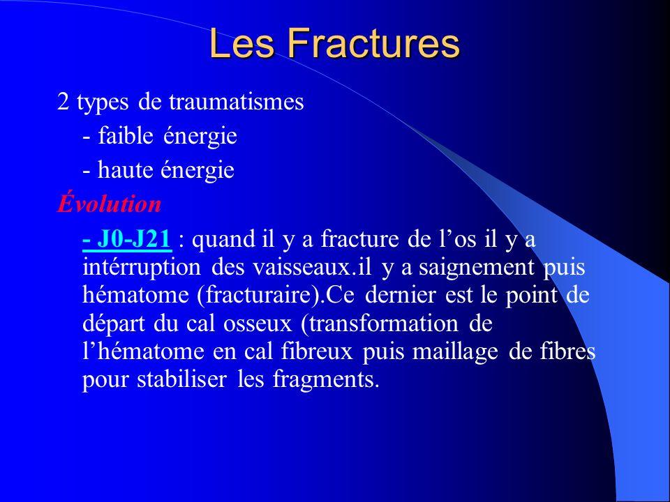 Les Fractures 2 types de traumatismes - faible énergie - haute énergie