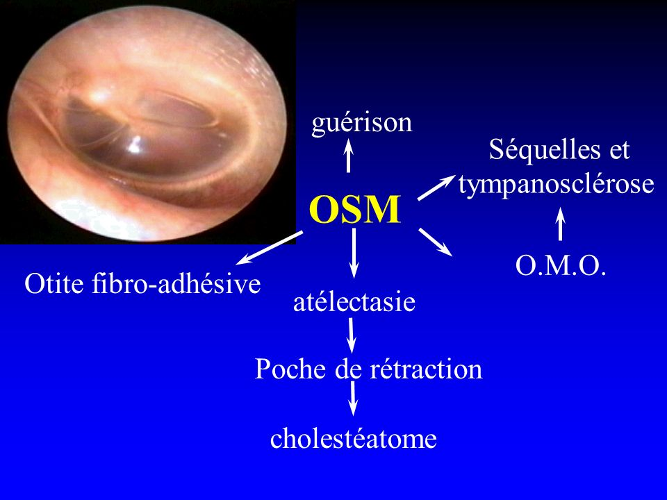 OSM guérison Séquelles et tympanosclérose O.M.O. Otite fibro-adhésive