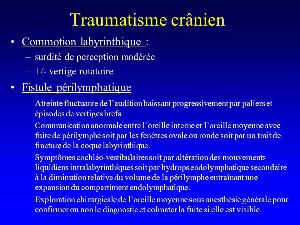 Traumatisme crânien Commotion labyrinthique : Fistule périlymphatique