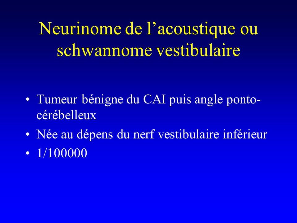Neurinome de l'acoustique ou schwannome vestibulaire