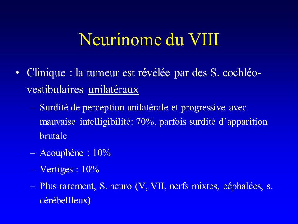 Neurinome du VIII Clinique : la tumeur est révélée par des S. cochléo-vestibulaires unilatéraux.
