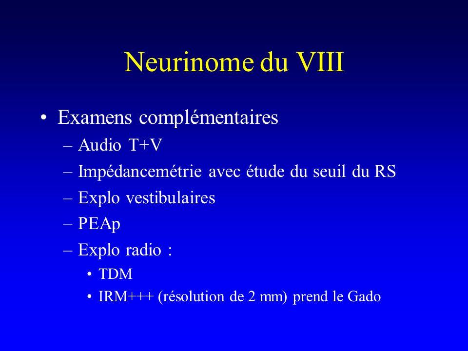 Neurinome du VIII Examens complémentaires Audio T+V