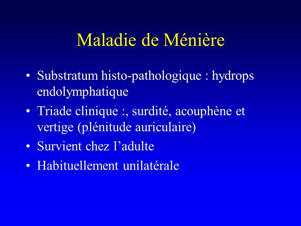Maladie de Ménière Substratum histo-pathologique : hydrops endolymphatique. Triade clinique :, surdité, acouphène et vertige (plénitude auriculaire)