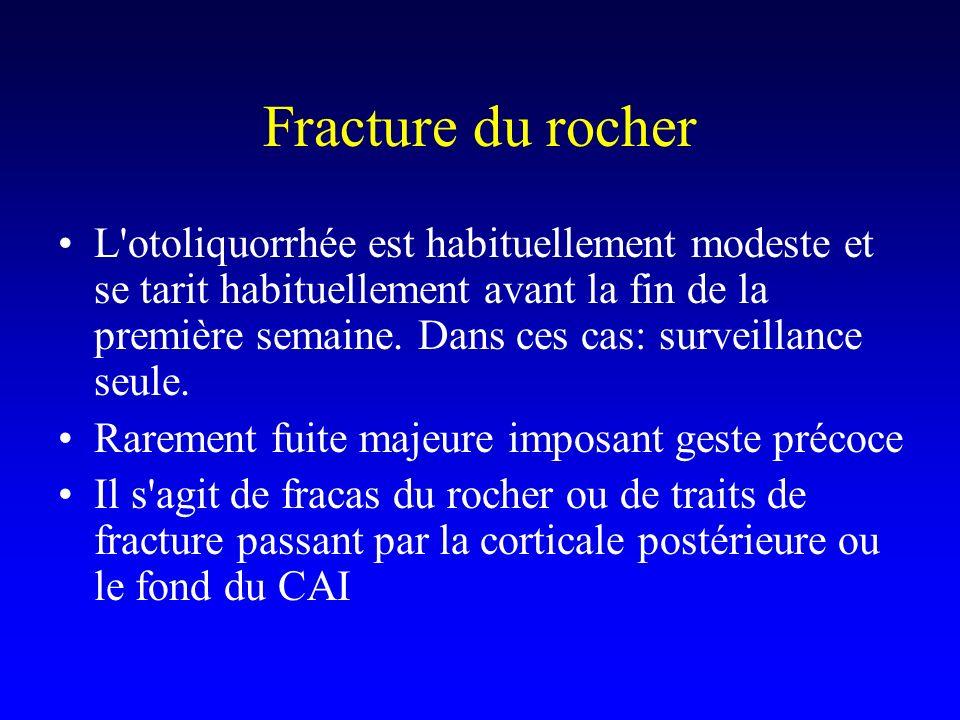 Fracture du rocher