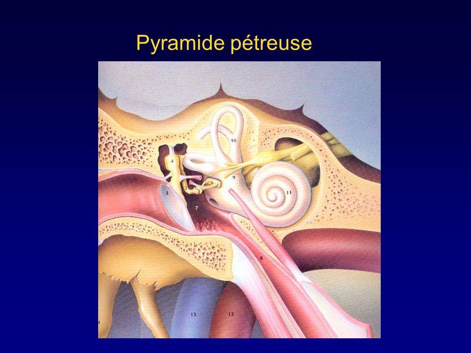 Pyramide pétreuse