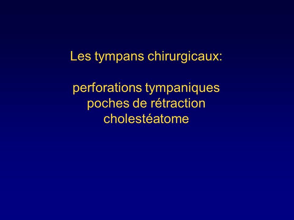 Les tympans chirurgicaux: perforations tympaniques poches de rétraction cholestéatome